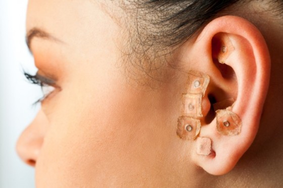 acupunture in the ear